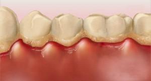 hoe ontstaat tandvlees ontsteking gingivitis